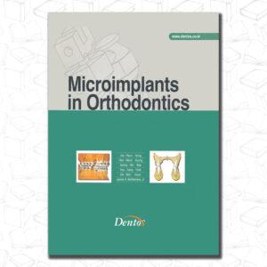 Microimplant in Orthodontics