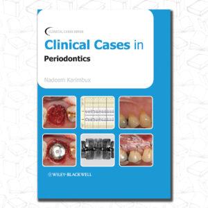 Clinical Cases in Periodontics