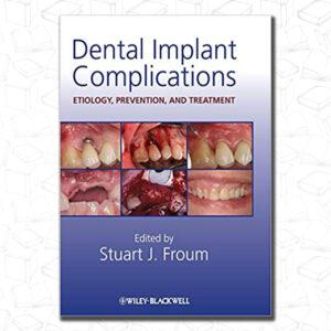 Dental Implant Complications