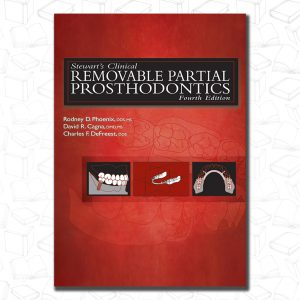 Stewart's Clinical Removable Partial Prosthodontics