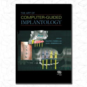 The Art of Computer-Guided Implantology