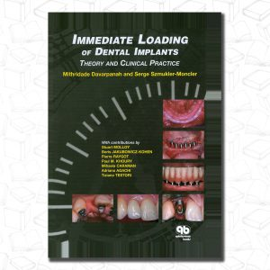 Immediate Loading of Dental Implants