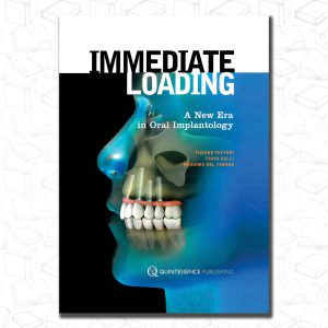 Immediate Loading: A New Era in Oral Implantology