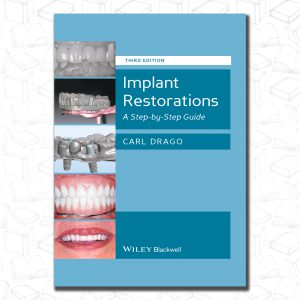 Implant Restorations: A Step-by-Step