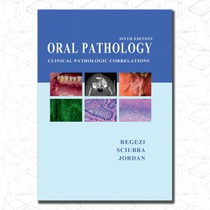 Oral Pathology: Clinical Pathologic Correlations