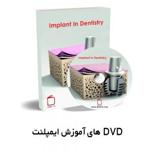 DVD Implantdentistry