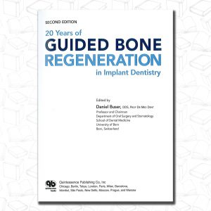20years of guided bone regeneration in implant dentistry