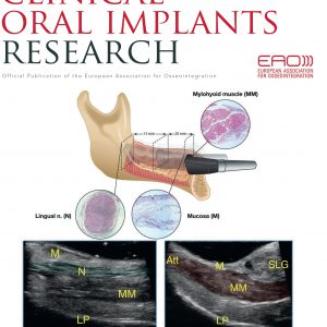 Clinical Oral Implants Research 2020-4