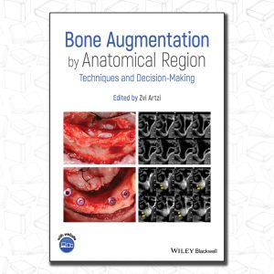 Bone Augmentation by Anatomical Region: Techniques and Decision–Making Hardcover
