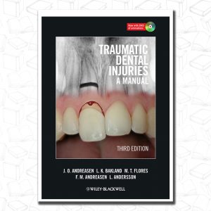 Traumatic Dental Injuries: A Manual