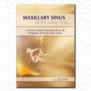 Maxillary Sinus Bone Grafting: A Picture Atlas Featuring over 50 Complete Step-By-Step Cases