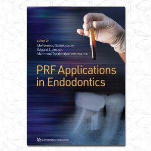 PRF Applications in Endodontics 2020
