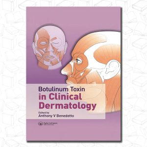 Botulinum Toxin in Clinical Dermatology