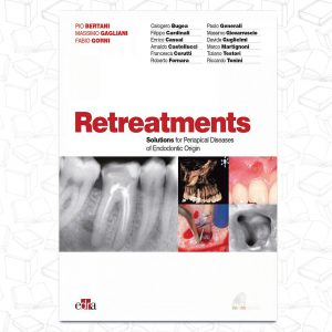 Retreatments - Solutions for Apical Diseases of Endodontic Origin 2020