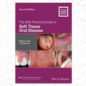 The ADA Practical Guide toSoft Tissue Oral