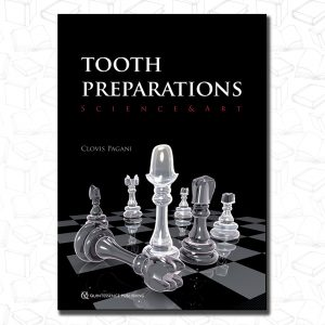 Tooth Preparations: Science & Art