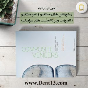 Composite Veneers: The Direct-Indirect Technique