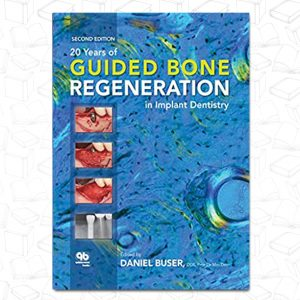 20 Years of Guided Bone Regeneration in Implant Dentistry: Second Edition
