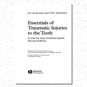 Essentials of Traumatic Injuries to the Teeth: A Step-by-Step Treatment Guide