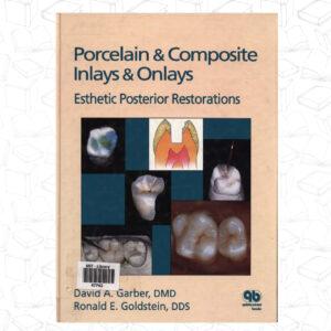 Porcelain & Composite Inlays & Onlays: Esthetic Posterior Restorations