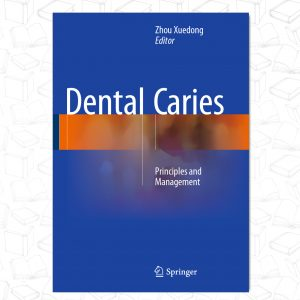 Dental Caries Principles and Management