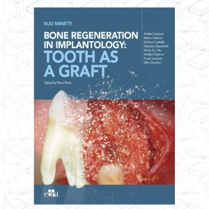 Bone Regeneration in Implantology-Tooth as a Graft 2021